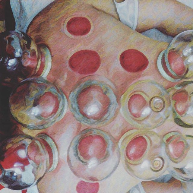 Cupping is a popular traditional east Asian therapy and due to recent Olympic coverage has piqued interest in many. Aside from helping with muscular aches and pains, cupping is used traditionally for the treatment of colds and flu's, tummy upsets, skin conditions, fertility and many more  #cupping #chinesemedicine #sydneyrd #coburg #prisma #cuppingftw #olympics #relaxation