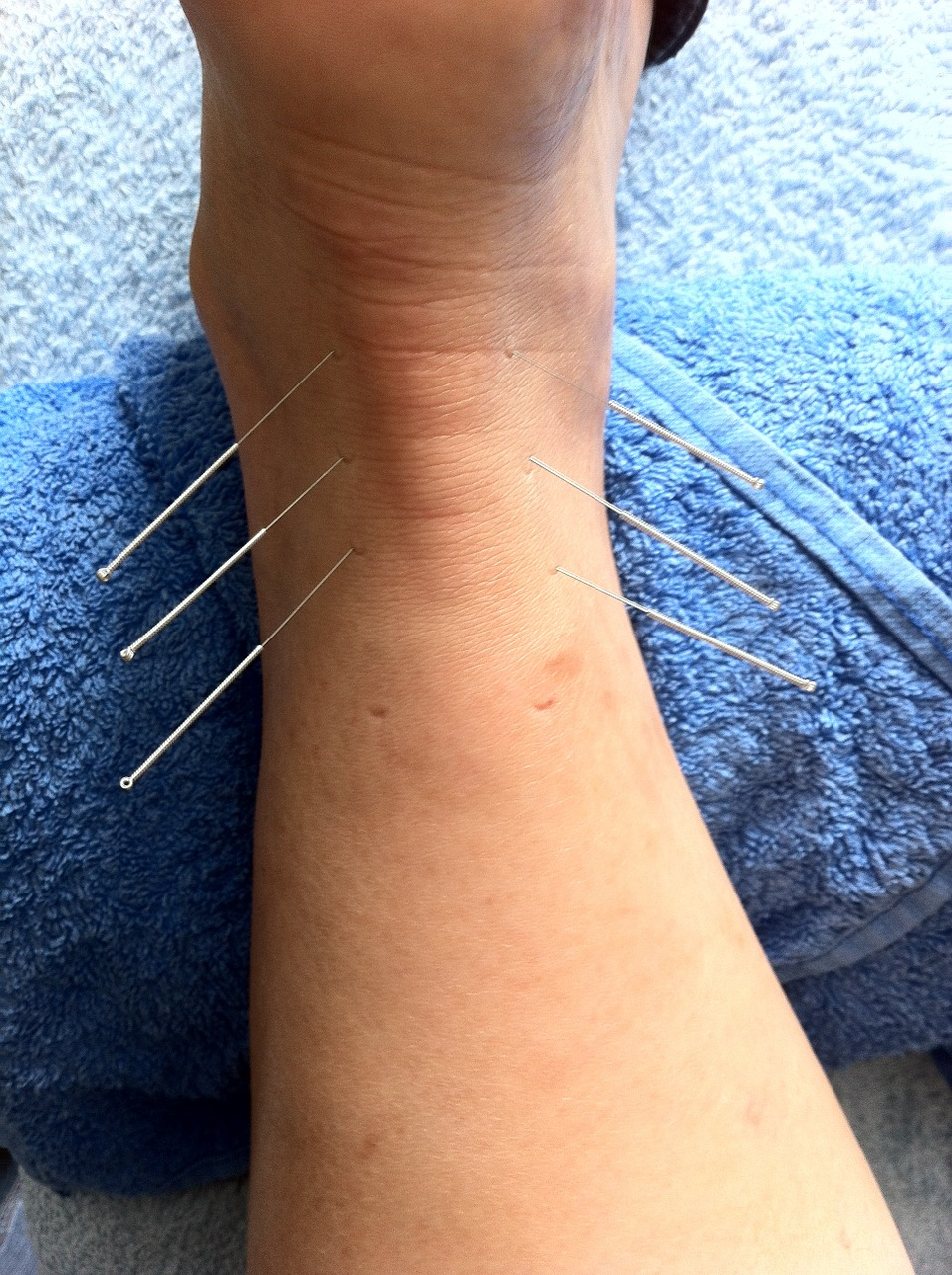 Dry needling northern suburbs