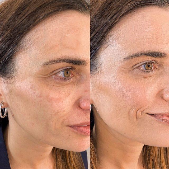 """A la luz natural me apetece ver piel , no producto. Y sin olvidar que cuando aplicamos producto en la piel adquiere textura. No pasa nada 😊  Mancha = tapar. Y para mi pigmentación en la piel = igualar- unificar.  Entiendo y respeto que cada persona vemos las cosas y en concreto el maquillaje de una manera y eso es lo bonito♥️ Puedo dejar una cantidad importante de producto y la para la foto perfecto, piel de porcelana como una muñequita.  Y ... para la """"vida real""""? ¿Cuando esa persona salga a la calle?  No os obsesionéis con la perfección ni con la corrección sois bonitas tal y como sois. De verdad ♥️ Resaltar, potenciar, aportar profundidad , aportar luz, dar dimensión .. GRACIAS PAULA por tu cariño y generosidad 😊♥️"""