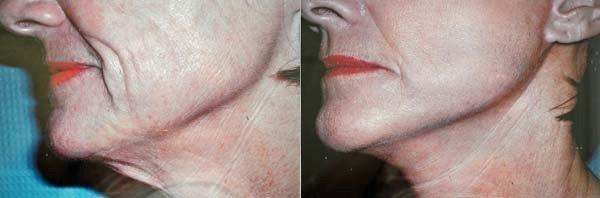 mini-facelift-retief-skin-center-2.jpg