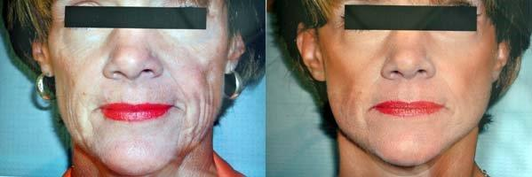 mini-facelift-retief-skin-center-3.jpg