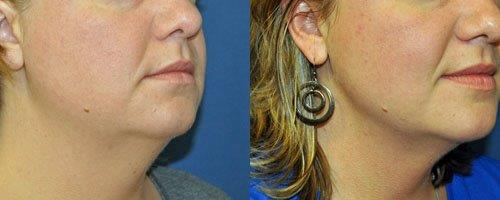 neck-face-liposuction-retief-skin-center-2.jpg
