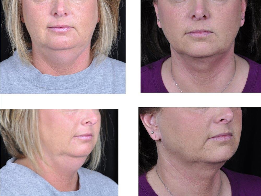 neck-face-liposuction-retief-skin-center-1.jpg