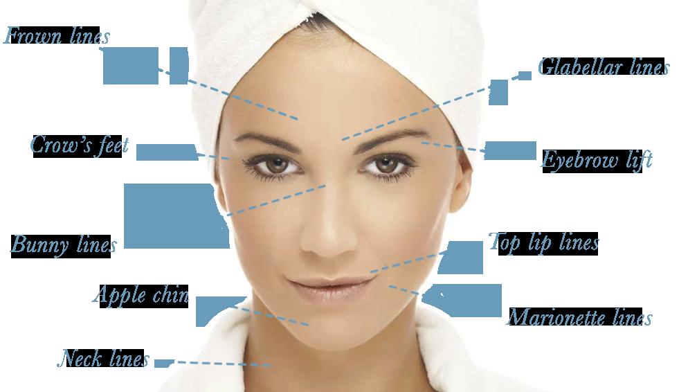 dysport-facial-lines.png