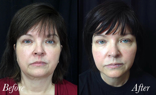 facetite-before-after-1.jpg