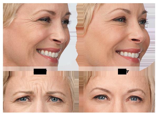 botox-nashville-before-after.png