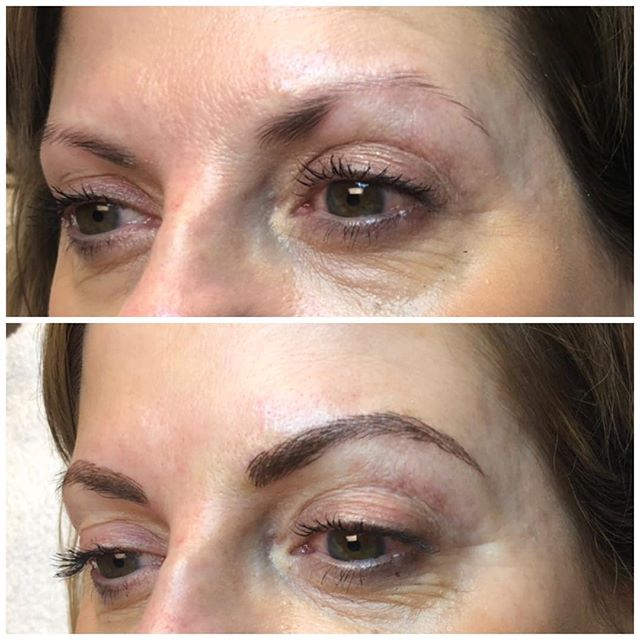 """Another Microblading before and after for those still on the fence! This client today said what every client says ""I can hear you working but I can't feel it!"" It's pain free, loves! I have some great numbing cream that I let sit for 30 mins before we begin. Because we are on NO RUSH. This is your face, your brows, and I take that very seriously. I take my time with you and we talk through it.  Consultations are free if you'd like to come in and have me assess what you need because one size does not fit all when it comes to brows ❤️ (615) 383-6092"" -Lauren Fransen, Retief Skin Center"