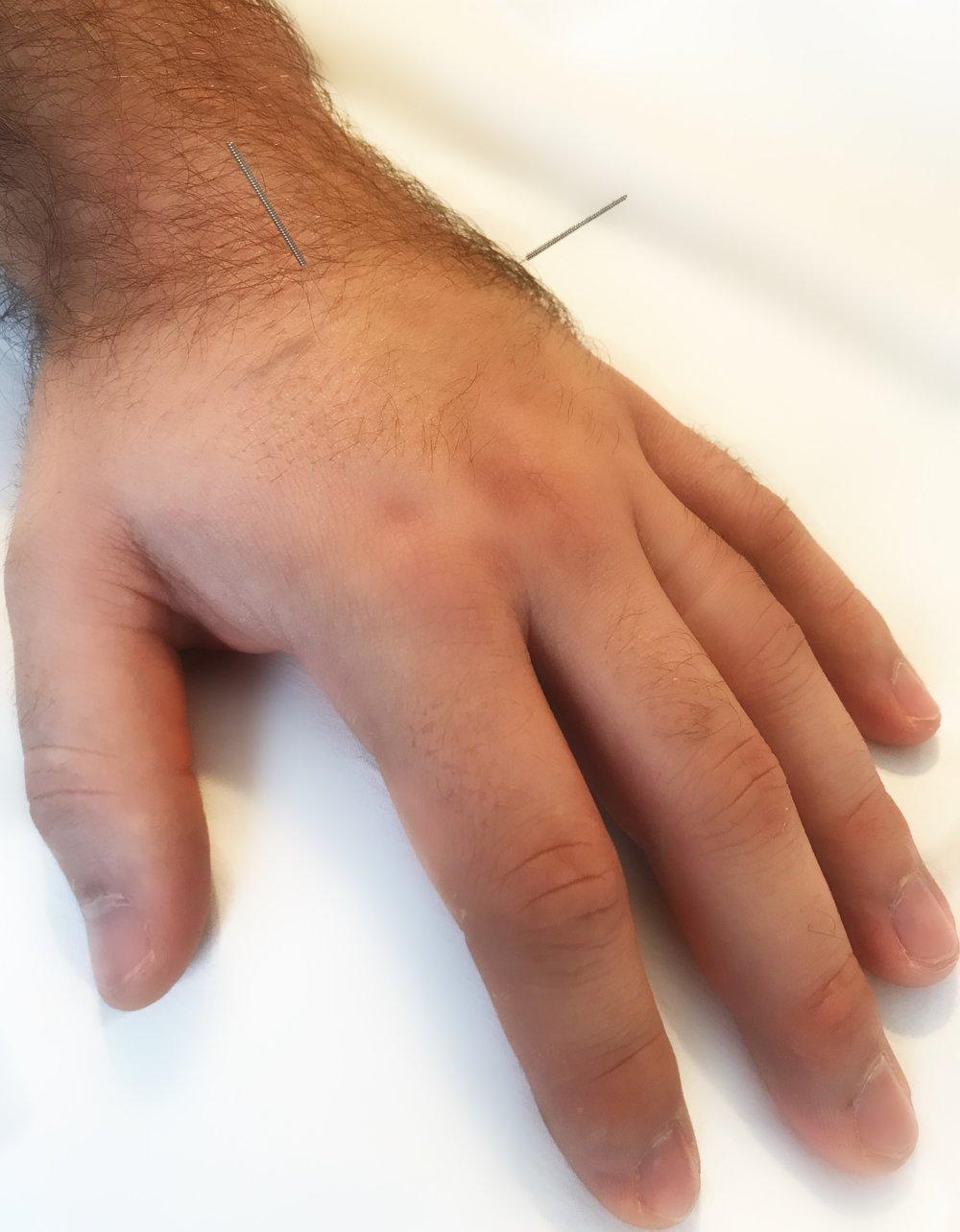 Back Pain Acupuncture Points