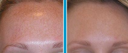 Skin Rejuv BA.jpg