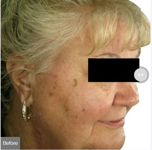 Photorejuvenation facial Spa Rockaway Before.JPG