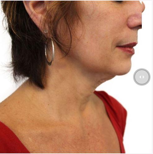 Spa Rockaway Wrinkle Reduction Before.JPG