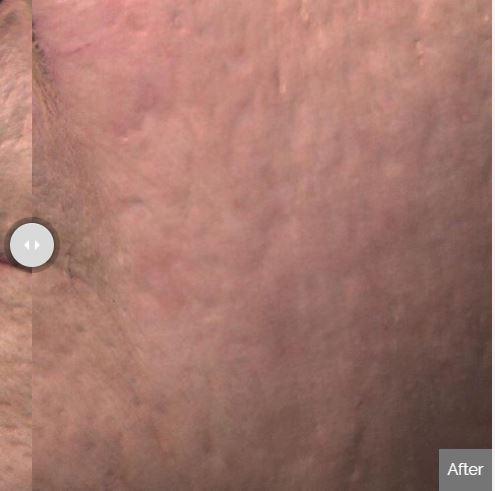 Skin Resurfacing Spa Rockaway After.JPG