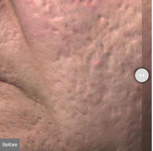 Skin Resurfacing Spa Rockaway Before.JPG