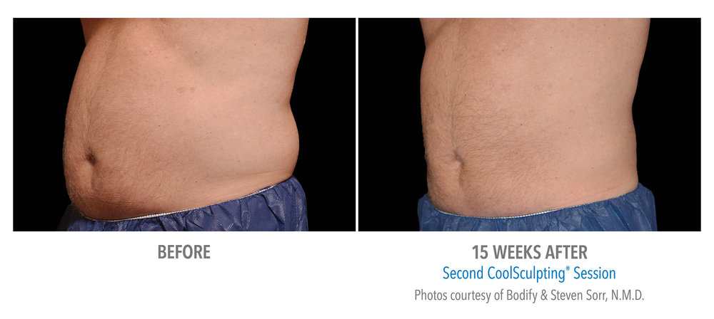 CS Mens Torso Before and after.jpg