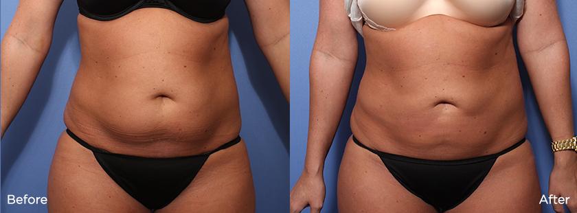 Liteshape-Lipo-to-abdomen-23335-front.jpg