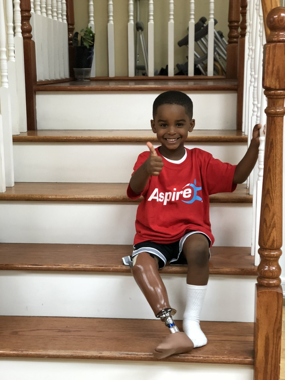 Julez - Julez is a congenital transtibial amputee who received a swim leg so he is able to get in and out of the pool during the summer.