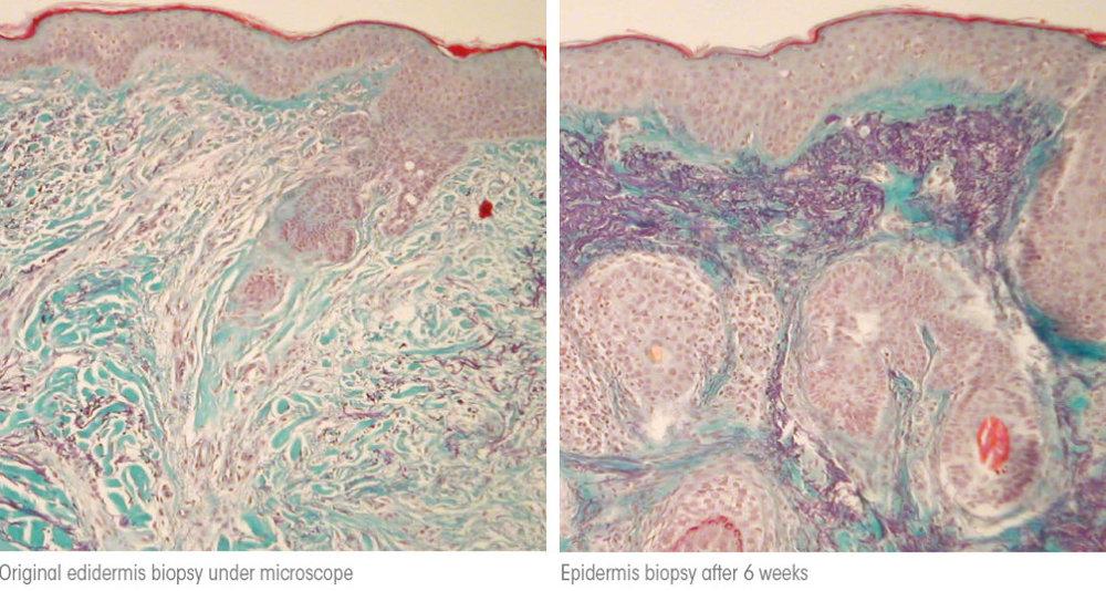 collagen-biopsy-1024x547.jpg