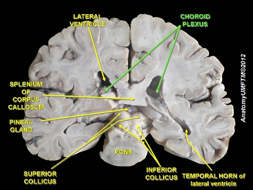 What Is The Function Of The Choroid Plexus Brain Stuff
