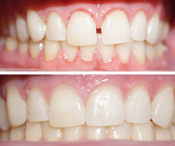 invisalign-before-and-afters2.jpg