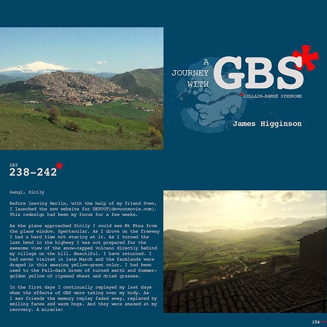 Day 238-242: A Journey with GBS, my journey, are daily posts to share my navigation through this insidious disease. I hope to raise awareness of GBS and add to a dialogue of the syndrome while documenting my recovery. JOIN ME, Follow me on Instagram and repost/share to help spread awareness and share survivor love!!! #jameshigginson #GBS #gillianbarresyndrome #gillianbarresurvivor #thiscanhappentoanyone