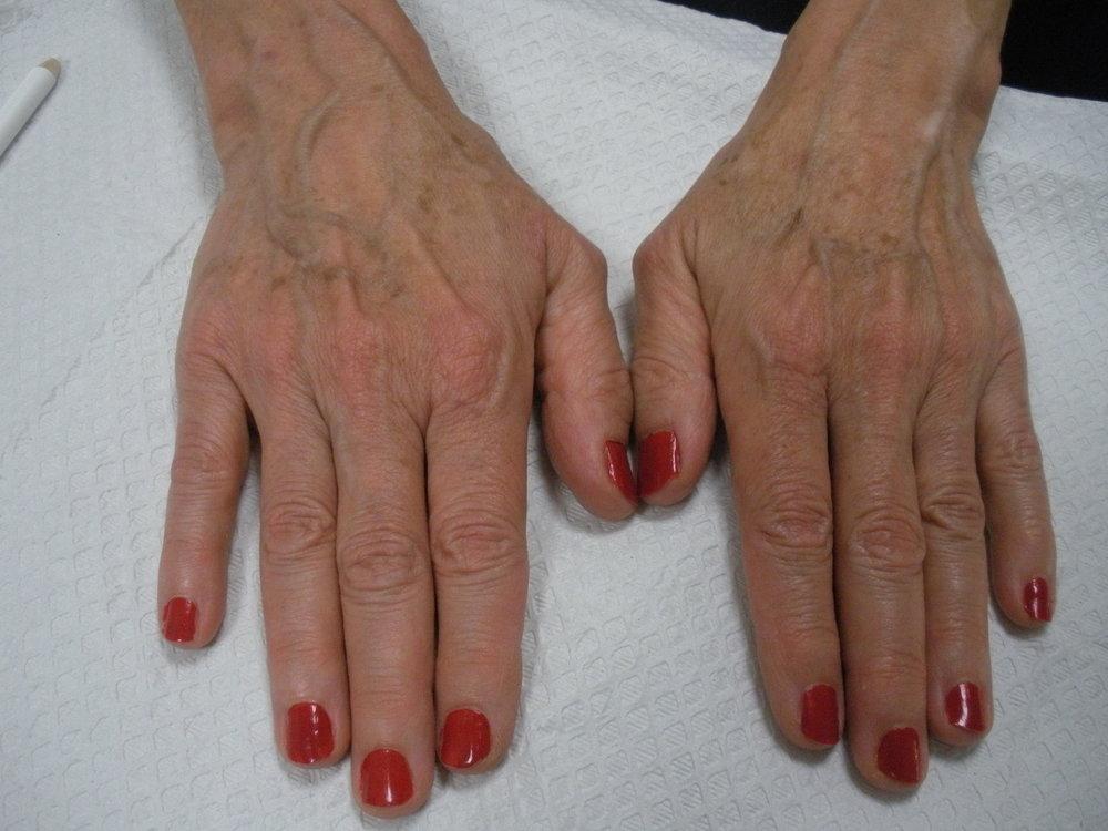 Hand rejuvenation before.JPG