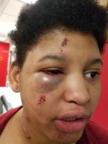 Image description: Sarah Villa, a young black woman, with a black eye on the right side of her face as well as cuts around her eye looking away from the camera.