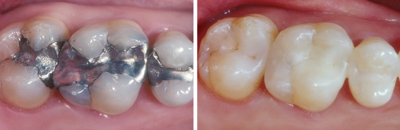 amalgam1- Middleburg VA Cosmetic and General Dentistry.jpg