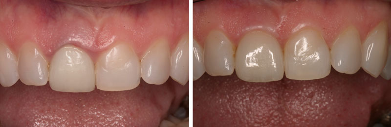 ceramicrown1- Middleburg VA Cosmetic and General Dentistry.jpg