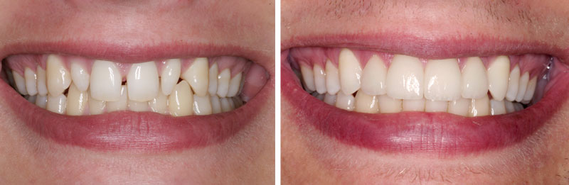 ceramicrown2- Middleburg VA Cosmetic and General Dentistry.jpg