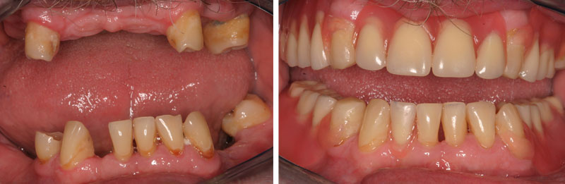 dentures2- Middleburg VA Cosmetic and General Dentistry.jpg