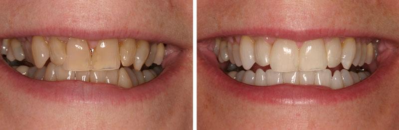 whiten2- Middleburg VA Cosmetic and General Dentistry.jpg