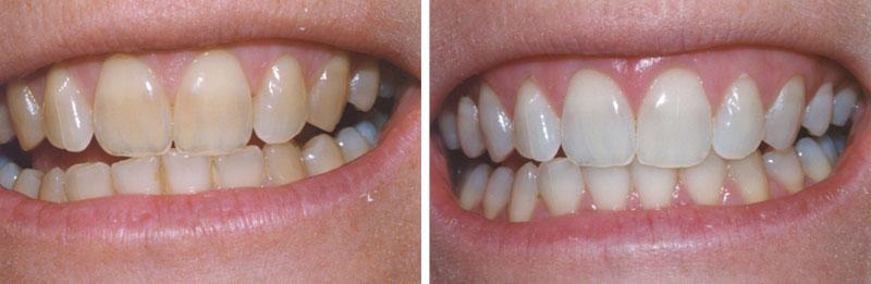 whiten1- Middleburg VA Cosmetic and General Dentistry.jpg