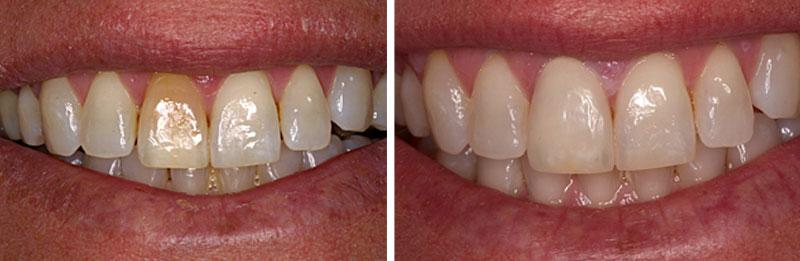 veneer-resin1- Middleburg VA Cosmetic and General Dentistry.jpg
