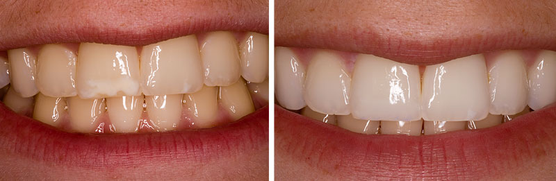white_op1- Middleburg VA Cosmetic and General Dentistry.jpg
