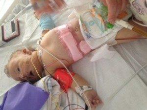 Lige efter lever operationen, stadig i respirator.