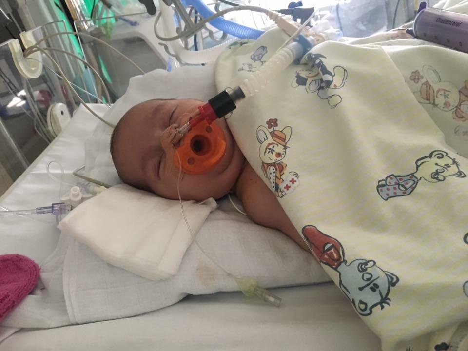 Kort tid efter 2 operation, 8 måneder gammel.