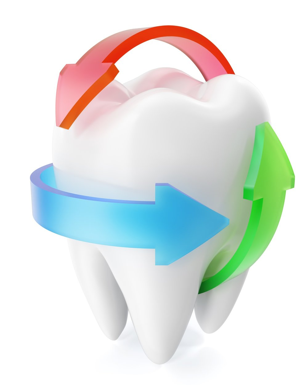 Tooth Decay - Tooth decay, also known as cavities or caries, is unfortunately still prevalent. Tooth decay occurs when long-standing bacteria coated on tooth surfaces (known as dental plaque) are exposed to sugar. The sugar is used by certain bacteria in plaque to produce acids which dissolve minerals from the tooth which ultimately weakens them. Eventually, after enough mineral has been dissolved away the surface of the tooth breaks resulting in cavities. Once a hole forms, it becomes challenging to clean the area effectively to remove plaque and so the cavity can get bigger and bigger eventually resulting in pain and if left will result in the tooth losing its blood supply and the nerve dying. Other foods such as processed white bread, starchy cereals and pasta can also result in tooth decay because a digestive enzyme present in saliva can break down these processed foods very quickly to produce sugars that dental plaque can thrive from.Now for the good newsTooth decay is preventable and in the early stages, even reversible. The process by which mineral is dissolved away can be reversed by your own saliva. This yo-yoing of the mineral in and out of the tooth is perfectly normal, but if there is a net loss of minerals a cavity eventually forms. It does, however, take longer for the minerals to be driven back into the tooth compared to dissolving it away, but it is doable. All you have to do is allow your saliva enough time to do it, and that means not having anything sugary (or food which is processed) for 3-4 hours after your first sugar hit, but this very much depends on the quality of your saliva. If your saliva is great at neutralising acids, then the time period for mineral to be put back is short. If, however, its of poor quality, it may take an age to neutralise and so you are at higher risk of tooth decay. I usually advise my patients to restrict their sugar intake to meal times only as most foods from supermarkets contain hidden sugars, even the savoury on