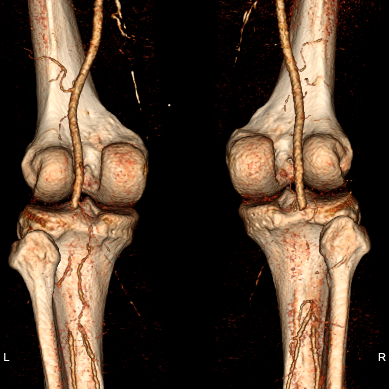 Volume rendered image from CTA showing bilateral popliteal artery occlusion
