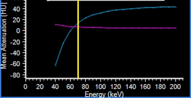 Spectral curves show the density of gallstone and bile is nearly identical at 70 keV (yellow line), but diverges at higher and lower keV