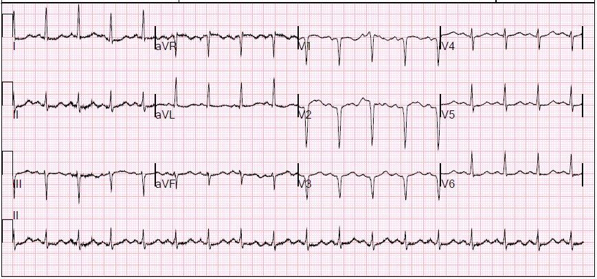 EKG shows Q waves consistent with old anteroseptal MI
