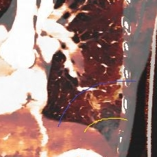 Iodine overlay image on CT Aorta shows the central core of decreased perfusion (outlined in yellow), and a peripheral zone of increased perfusion (outlined in blue). I beleive this is the penumbra.