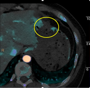 Stomach hole in nicely seen on iodine overlay (yellow circle)
