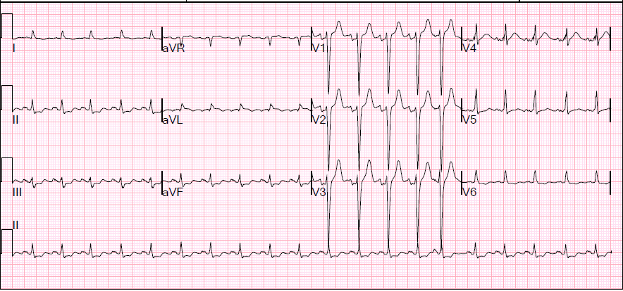 Second EKG (40 minutes later): The ST depressions have normalized!