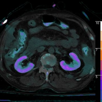 Fused axial image with iodine overlay shows iodine uptake in pericolonic fluid, as well as iodine excretion in the colon (this may be from biliary excretion or direct GI excretion of contrast).