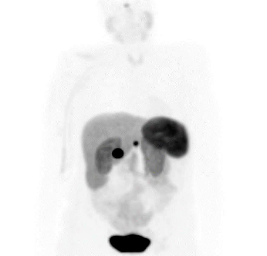 Gallium Dotatate PET scan: uptake in gastric submucosal nodule and the porta hepatis mass confirms neuroendocrine nature. Physiologic uptake in pituitary, spleen and liver.