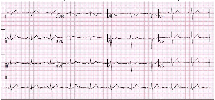 First EKG: Subtle ST segment changes, below the threshold of a radiologist