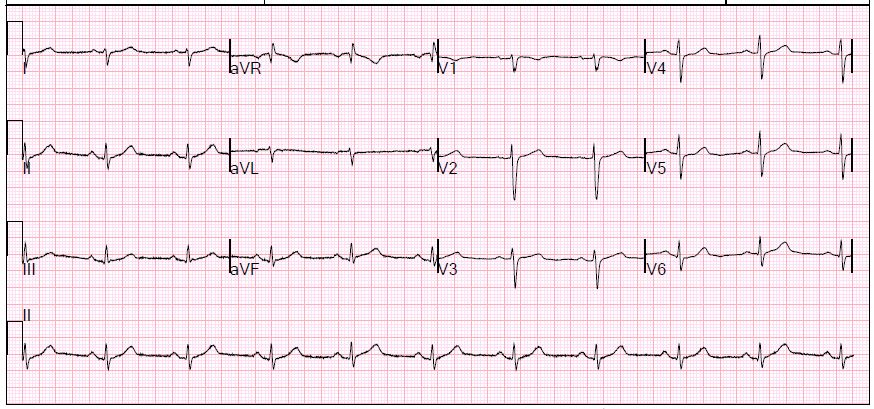 Second EKG: Dynamic ST changes. Wish I could tell you more.