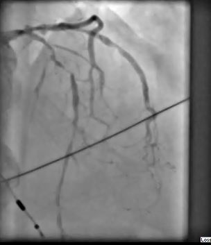 Coronary angiogram: Critical stenosis of the LAD. Severe 3-vessel disease