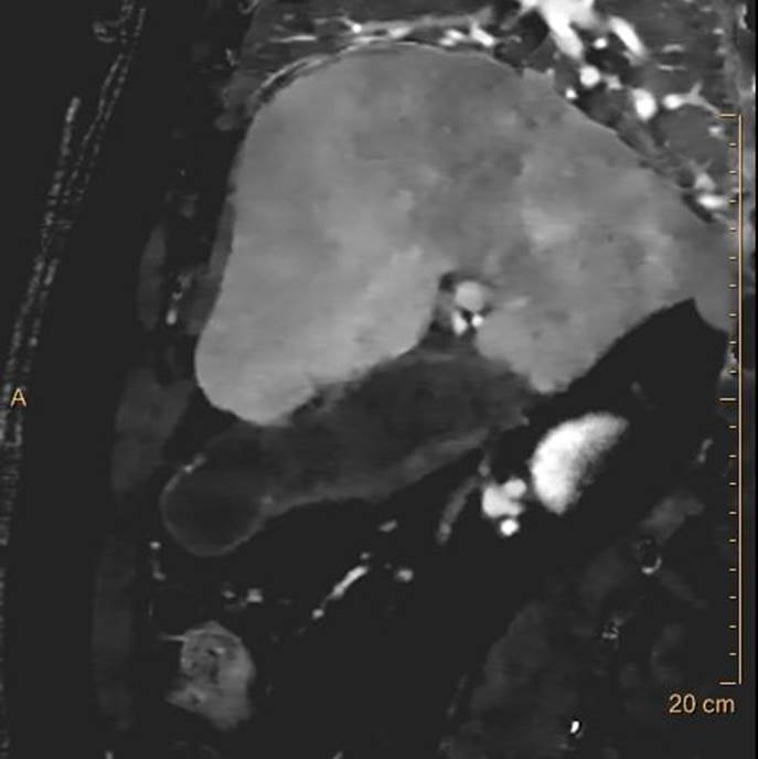 """Iodine map also shows the same """"hole"""". Discontinuous enhancement is a very good sign of necrosis or perforation."""