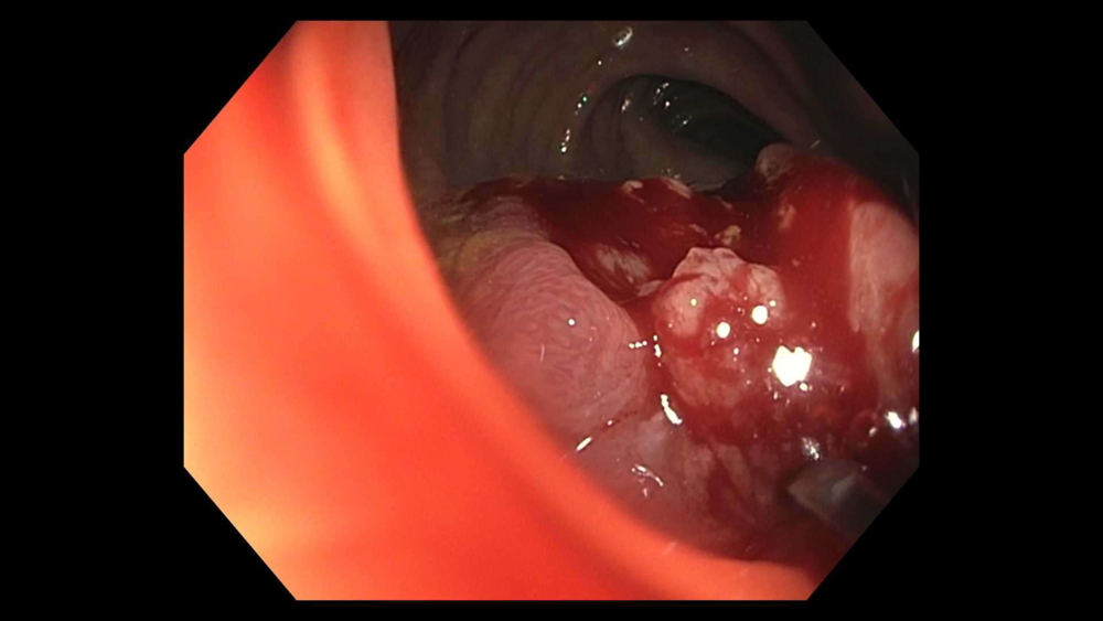 Mass as seen on colonoscopy. This is a moderately differentiated adenocarcinoma.